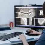 Na czym polega rentgen stomatologiczny?