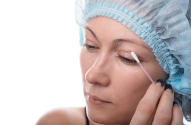 Korekta opadającej powieki w Derm Estetyka chirurgia plastyczna